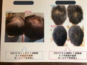 強髪プログラム
